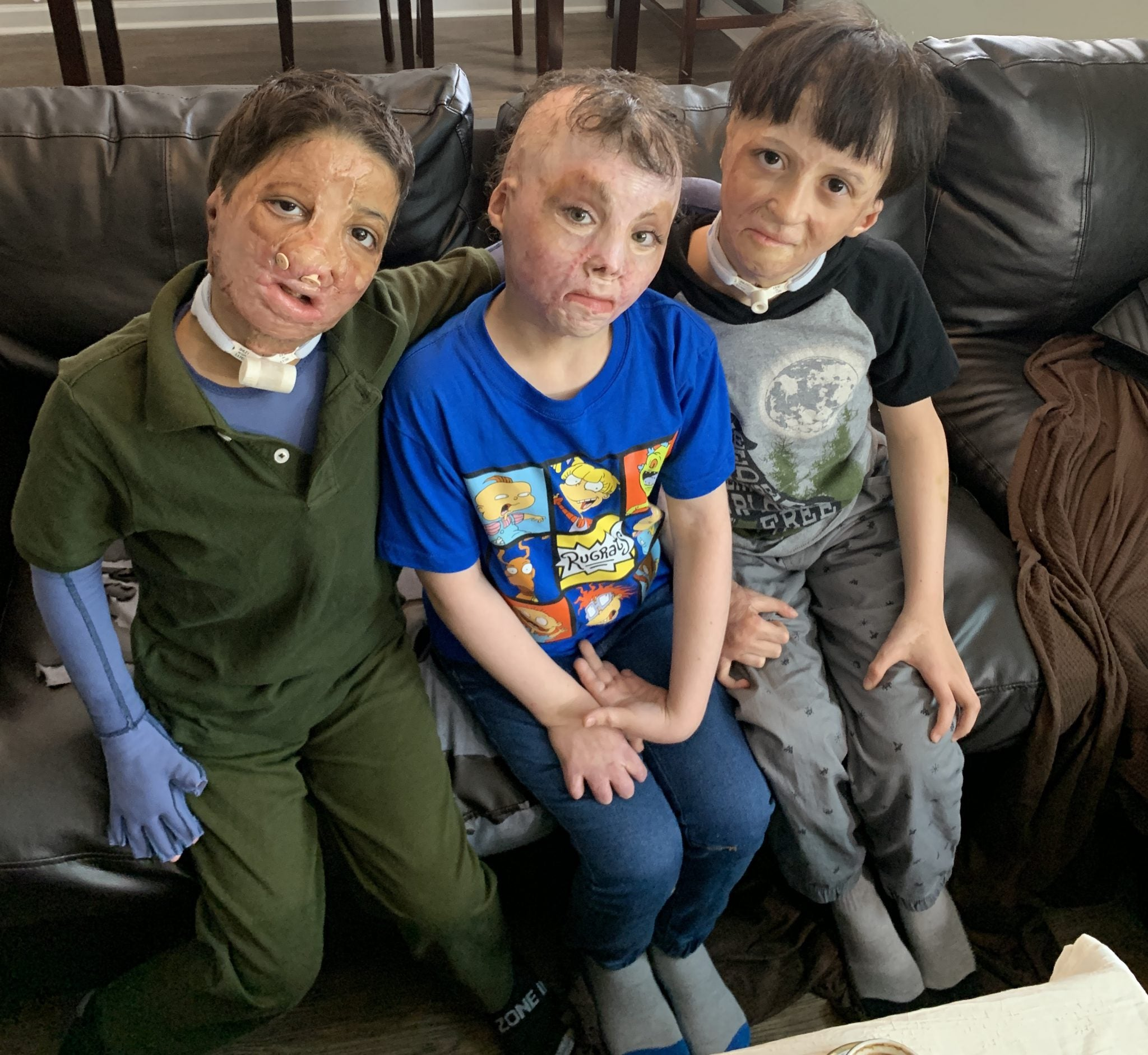 badly burned children from the Syrian War